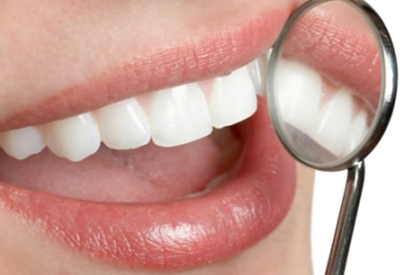 Kiss dent Clinica dentale Tirana